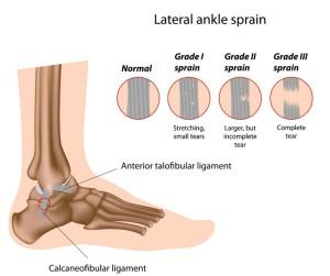 ankle sprain podiatrist Rowlett