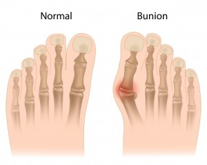 bursituts treatment Rowlett TX foot doctor