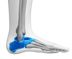 tarsal tunnel syndrome ankle pain
