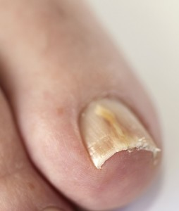 Toenail Fungus Speciaist in Rowlett and Royse City | Casteel Foot ...